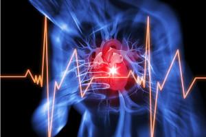 arresto-cardiaco1